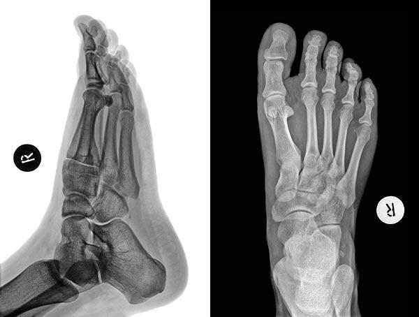 Foot Pain - X-Ray